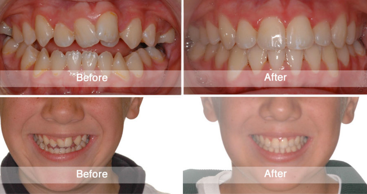 Before and After | Viva Orthodontics