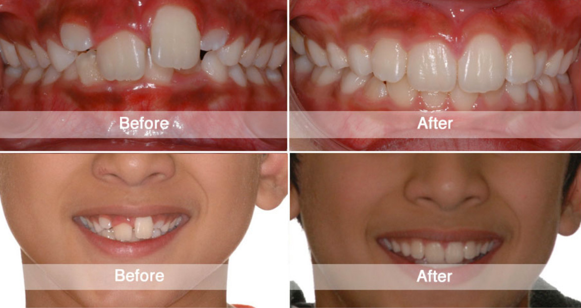 Before And After Viva Orthodontics
